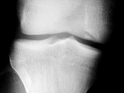 dacă osteocondroza articulației femurale